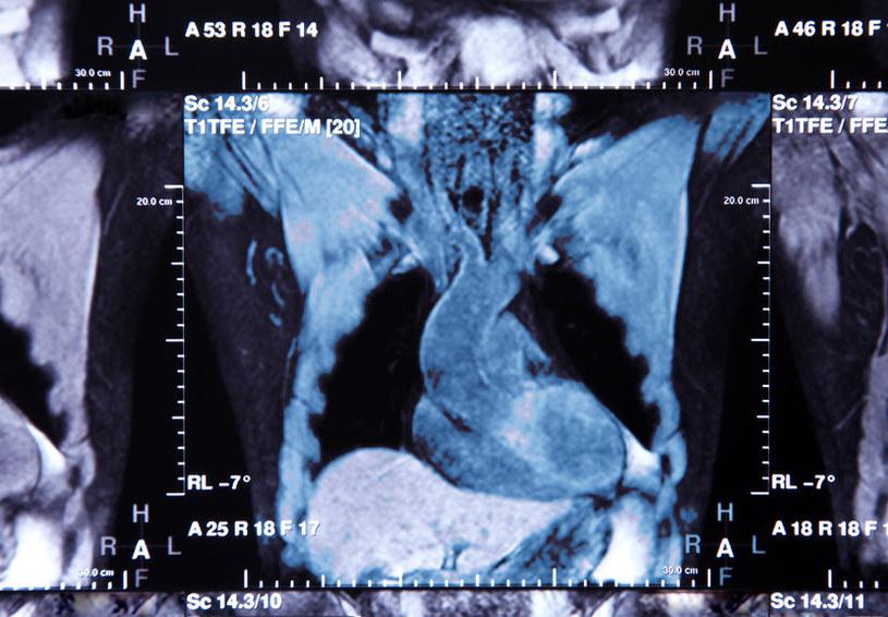 Zdjęcie TK (tomografii komputerowej) tętnic wieńcowych /123RF/PICSEL