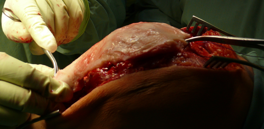 Zdjęcie z operacji /Uniwersytecki Szpital Kliniczny we Wrocławiu /