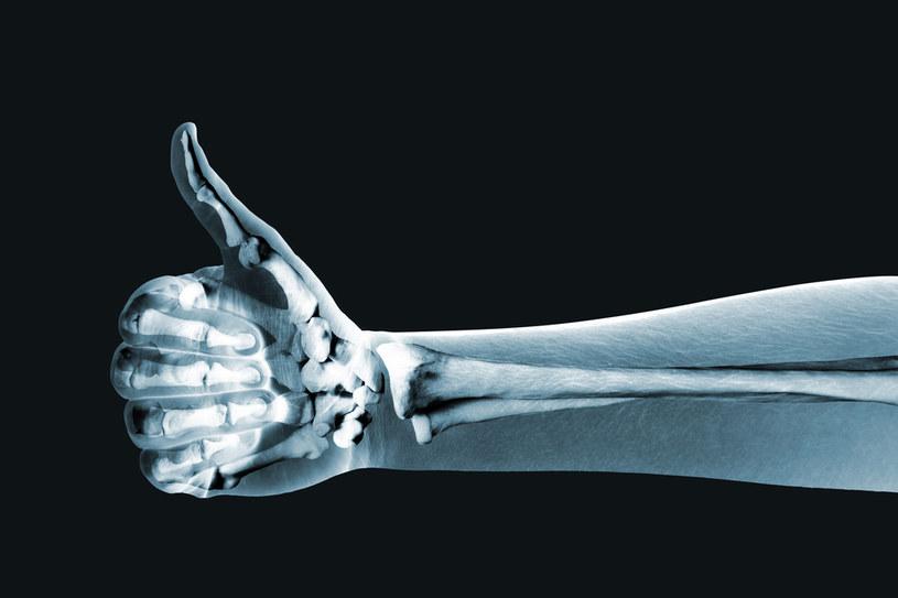zdrowe kości /© Photogenica