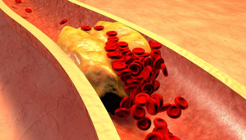 Ze zbyt wysokim poziomem złego cholesterolu trzeba walczyć i tej walki nie odkładać na później /123RF/PICSEL