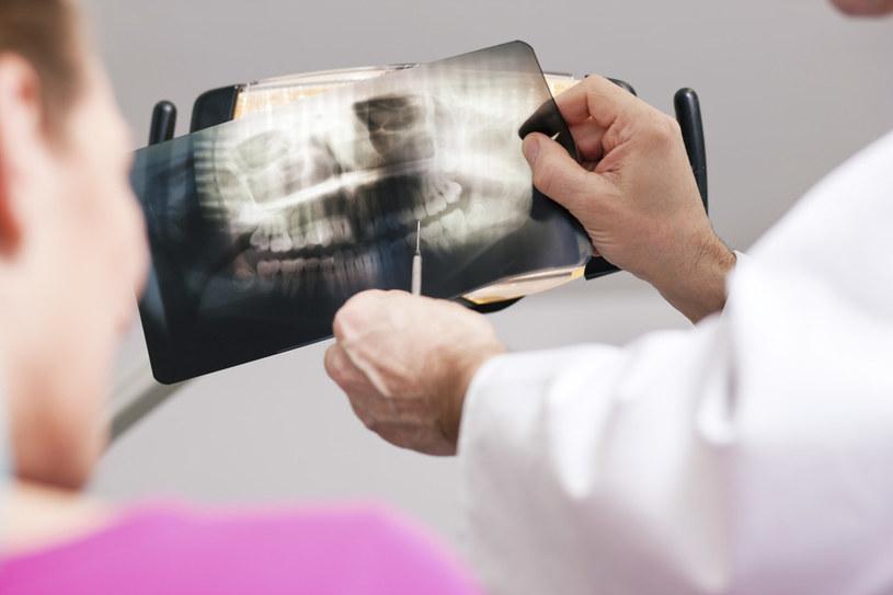 zęby mądrości usuwanie /© Photogenica
