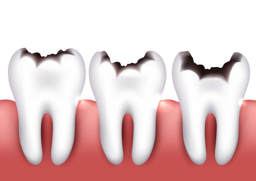Zęby mogą się ukruszyć /123RF/PICSEL