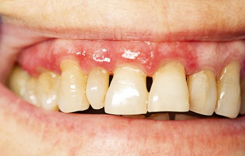 Zęby nie są dane raz na zawsze... /123RF/PICSEL