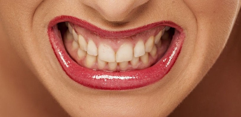 Zęby są wrażliwe na działanie leków /123RF/PICSEL