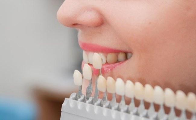 zęby wybielanie /© Photogenica