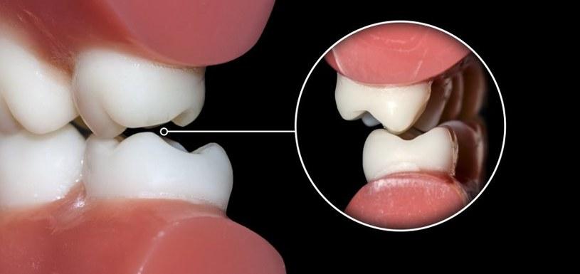 Zęby z upływem czasu niestety wypadają /123RF/PICSEL