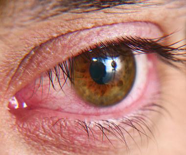 Zespół czerwonego oka: Przyczyny, objawy i leczenie