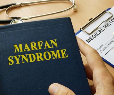 Zespół Marfana: Przyczyny, objawy i leczenie
