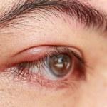 Zespół suchego oka: Jak sobie z nim radzić?