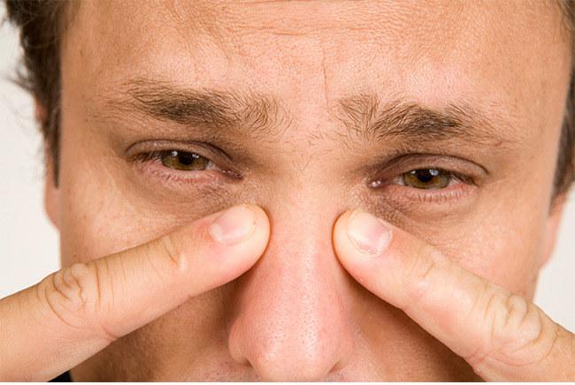 Zespół suchego oka objawy /© Photogenica