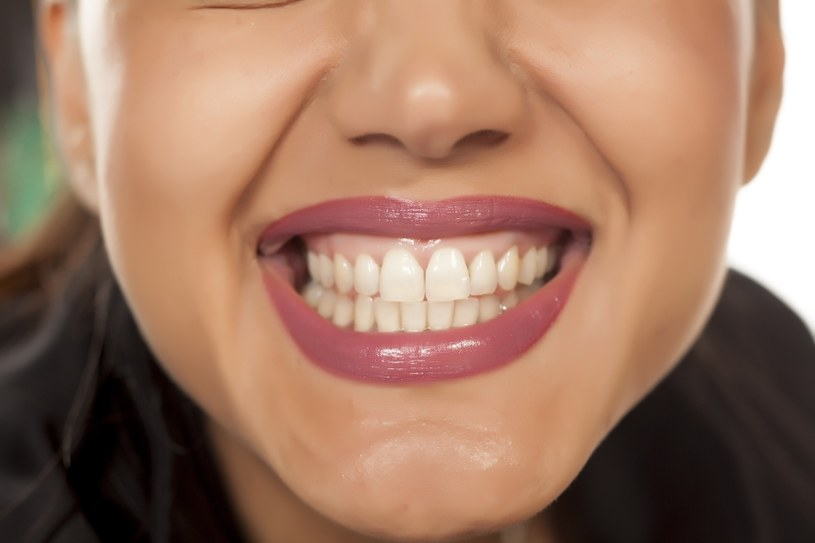 Zgrzytasz zębami? /©123RF/PICSEL