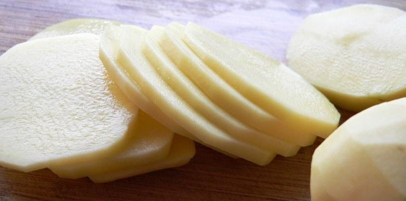 ziemniaki pod oczy /© Photogenica