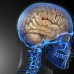 Zimna plazma zastopuje guza mózgu