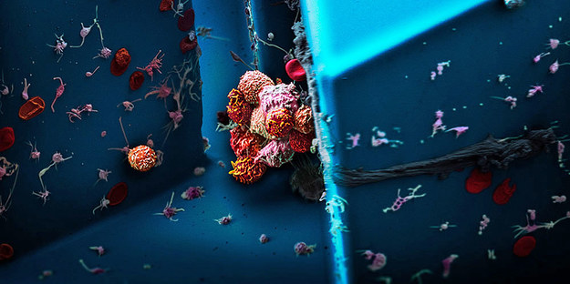 Zlepek komórek nowotworowych wyizolowany z krwi pacjentki cierpiącej na raka piersi, widoczny pod mikroskopem elektronowym /Martin Oeggerli/Micronaut, Nicola Aceto & Ali Fatih Sarioglu) /Materiały prasowe