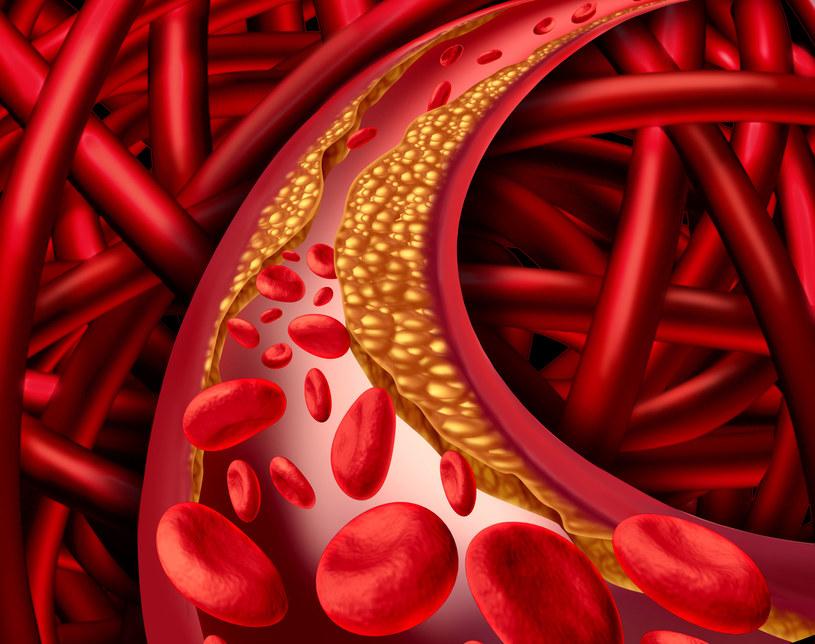 Zły cholesterol zapycha żyły prowadząc do wielu chorób z miażdżycą i zawałem na czele /123RF/PICSEL