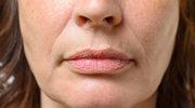 Zmarszczki wokół ust