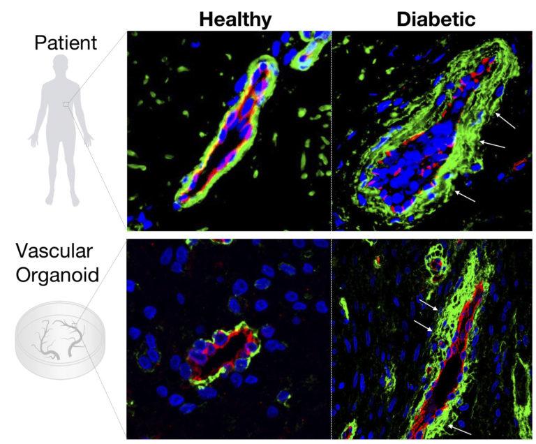 Zmiany cukrzycowe (po prawej) w prawdziwych (u góry) i sztucznych naczyniach krwionośnych /IMBA /Materiały prasowe