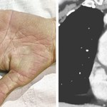 Zmiany na dłoniach ujawniły raka płuc
