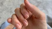 Zmiany na paznokciach. Jaką chorobę sygnalizują?
