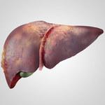 Zmiany na skórze, które świadczą o chorobach wątroby