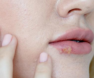 Zmiany na ustach: O czym świadczą?