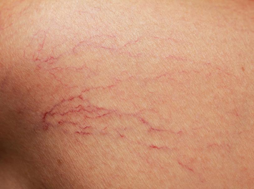Zmiany skórne nazywane potocznie pajączkami to sieci rozszerzonych drobnych żyłek widoczne pod skórą /123RF/PICSEL