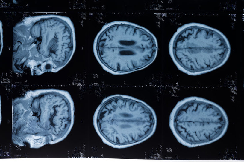Zmiany w mózgu /©123RF/PICSEL