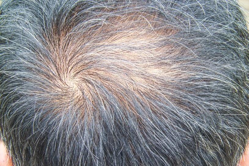 Znaleziono skuteczny sposób na łysienie /123RF/PICSEL