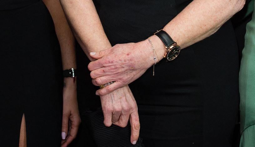 Zniszczone dłonie Sary Ferguson /Getty Images