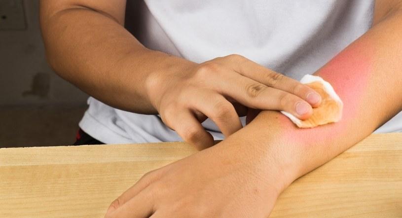 Zniweluj skutki oparzenia /©123RF/PICSEL