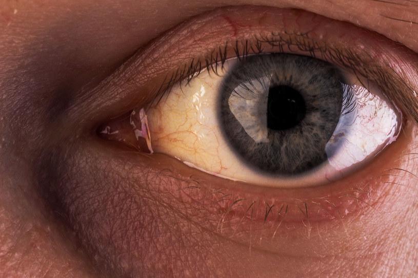 Żółte gałki oczne mogą być objawem raka tarczycy /123RF/PICSEL