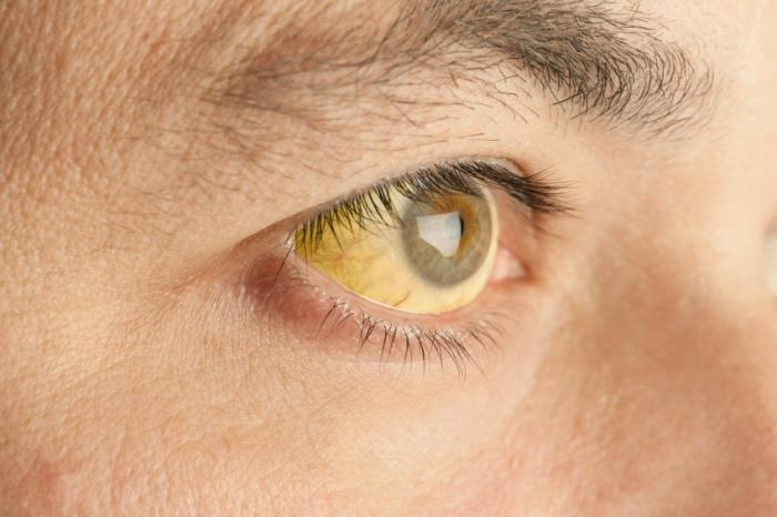 żółte oczy /© Photogenica