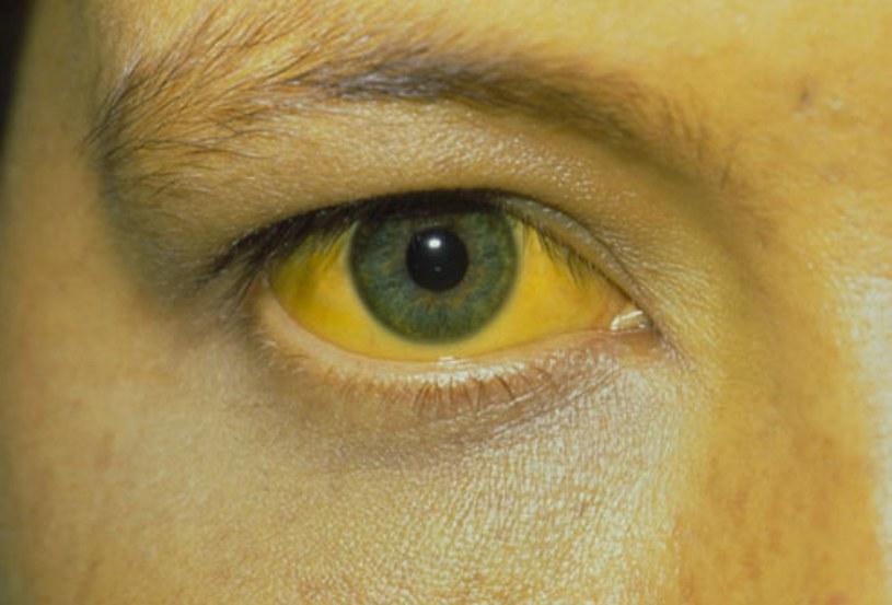 żółte oko /© Photogenica
