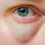 Zredukuj obrzęki pod oczami