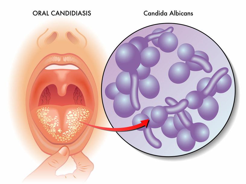Źródłem infekcji jest Candida albicans /123RF/PICSEL