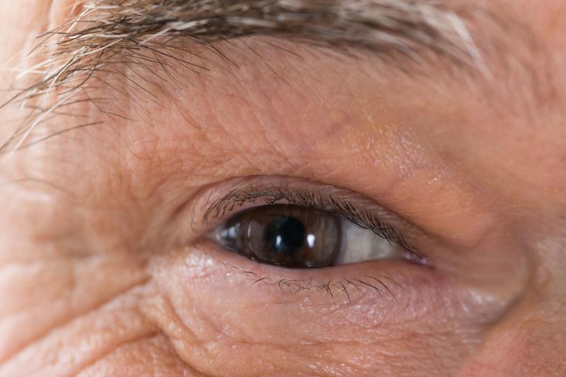Zwyrodnienie plamki żółtej może doprowadzić do utraty wzroku /123RF/PICSEL